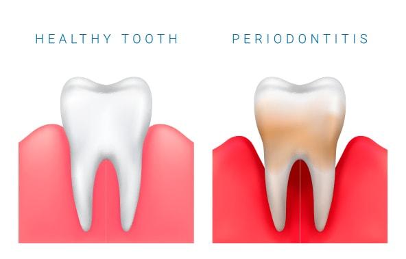 Periodontologia - efekty