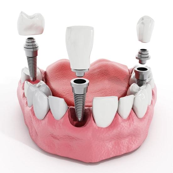 Implanty zębowe Żoliborz