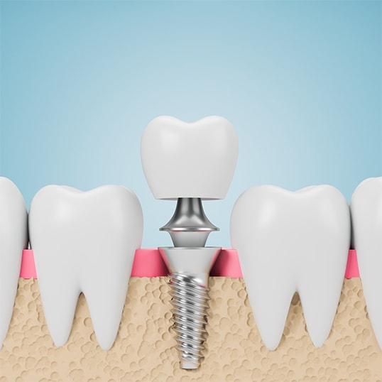 Wszyczepienie implantu