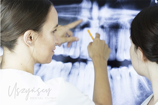 Zdjęcie pantomograficzne zębów